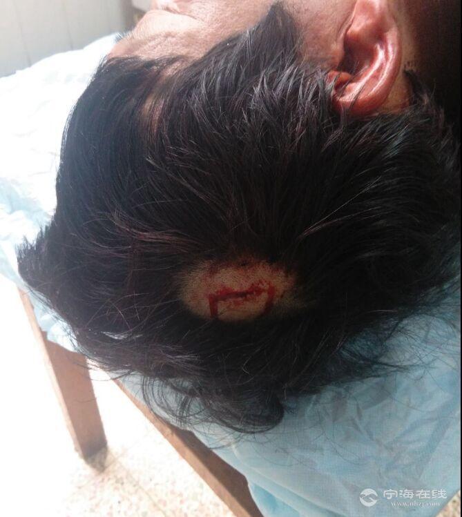 头部伤口30mm,缝合三针